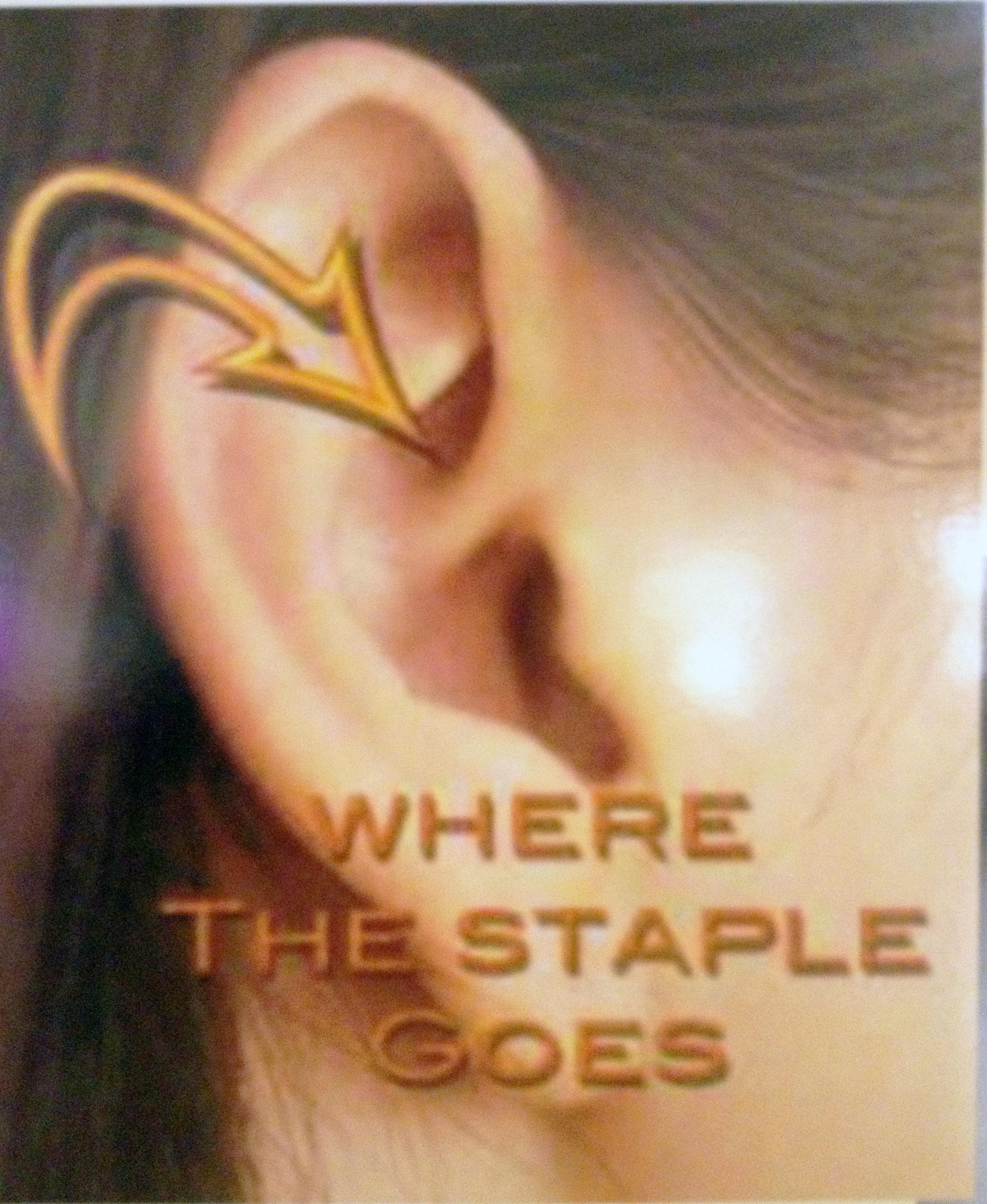 earstaple1